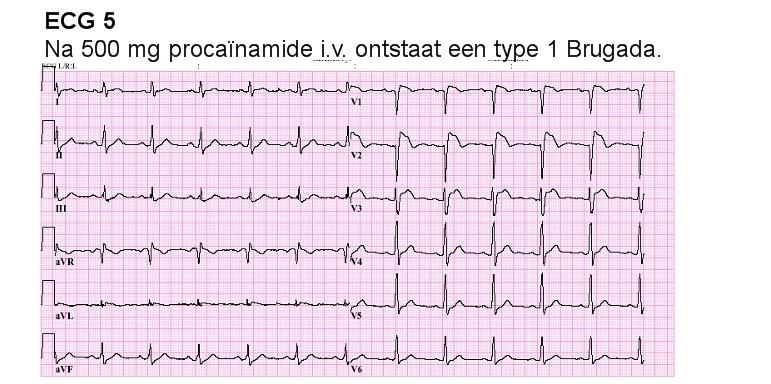 prinzmetal angina symptomen