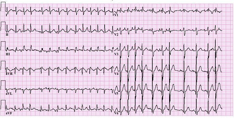 Pulmonale afwijkingen