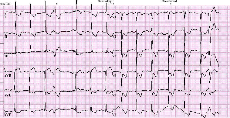 inferoposterolateraal infarct